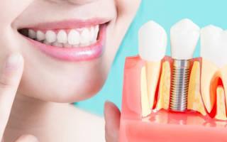Имплантация зубов сколько времени занимает