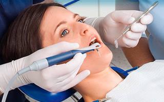 Ультразвуковая чистка зубов до и после