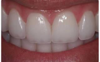 Что такое люминиры в стоматологии