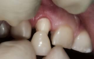 Черная десна вокруг зуба