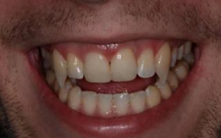 Заточенные зубы