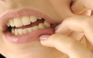 Чешется зуб под коронкой