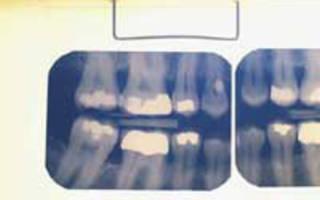 Из чего состоит пломба для зубов