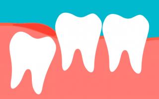 Зубы мудрости что с ними делать