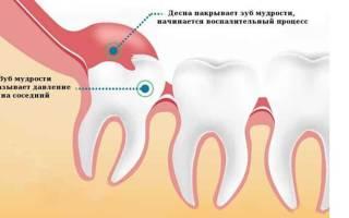 Как понять что растет зуб мудрости