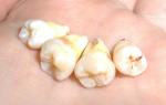 Если после удаления зуба остался осколок симптомы