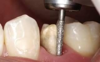 Обточили зубы под коронки а они болят