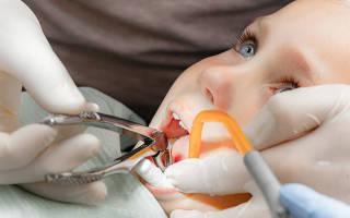 Удалить зуб ребенку