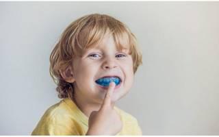 Капы для выравнивания зубов для детей