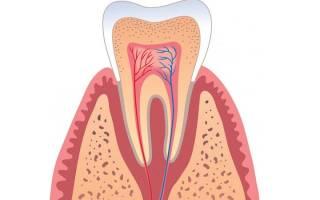 Нерв в зубе