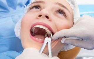Когда можно полоскать рот после удаления зуба