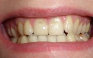 Стерлась эмаль на передних зубах