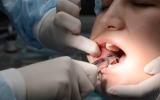 Какие антибиотики пить после удаления зуба мудрости