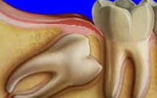 Что такое дистопированный зуб