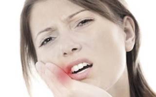 Метрогил дента от зубной боли