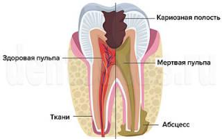 Осложнения после лечения пульпита