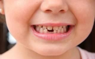 Вырвали молочный зуб а корень остался