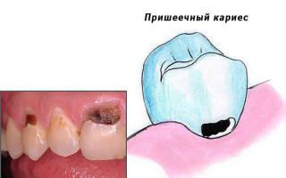 Пришеечный кариес лечение