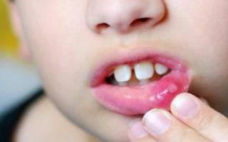 Как лечить вирусный стоматит у ребенка