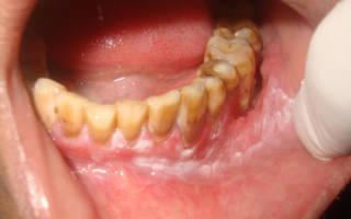 Лейкоплакия слизистой рта