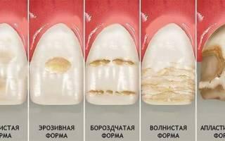 Серый налет на зубах
