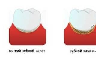 Зубной камень причины появления