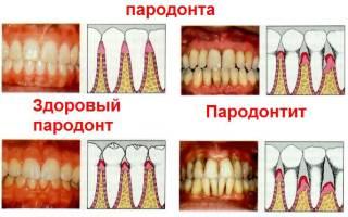 Пародонтоз и пародонтит в чем разница