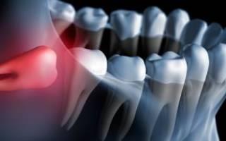 Как обезболить зуб мудрости в домашних условиях
