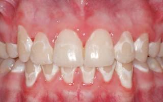 Белый налет на зубах около десен