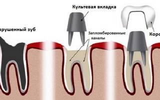 Культевые вкладки в стоматологии
