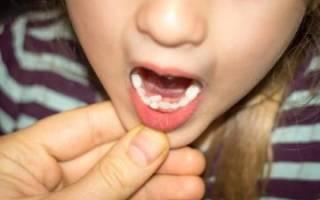 Акульи зубы у детей