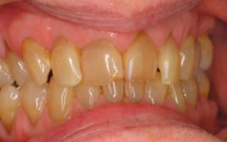 Из за чего желтеют зубы
