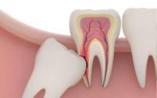 Опухла десна растет зуб мудрости что делать