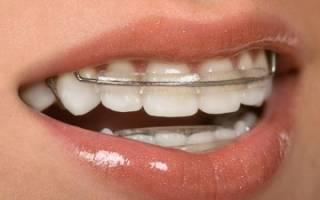 Кривые зубы что делать