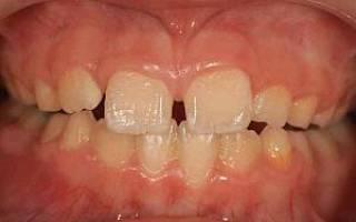 Какие зубы режутся больнее всего у детей