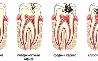 Как защитить зубы от разрушения
