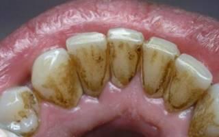 Профессиональная чистка зубов что это