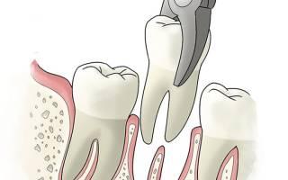 Через сколько спадает отек после удаления зуба
