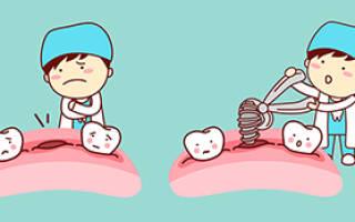 Что можно есть после имплантации зубов