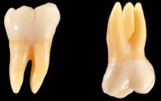 Моляры зубы