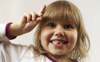 Время смены зубов у детей