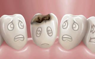Белое пятно на зубе что это
