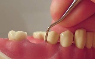 Что такое кюретаж в стоматологии