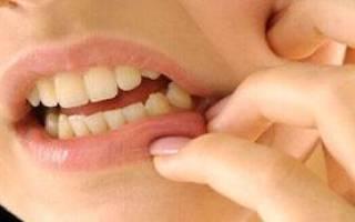 После удаления зуба болит шея