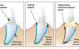 Как убирают камень с зубов