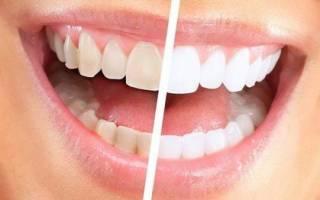 Зубная паста с содой