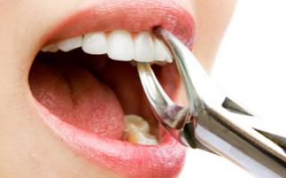 Когда спадет опухоль после удаления зуба