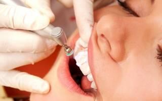 Как происходит чистка зубов в стоматологии