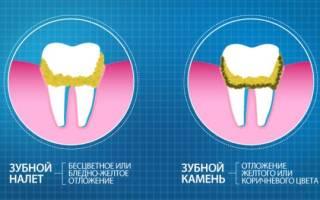 Зубные флоссы
