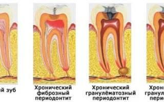 Периодонтит классификация